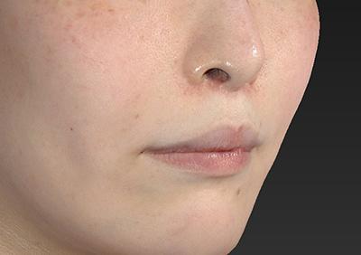 新宿ラクル美容外科クリニック 山本厚志 「人中短縮術(リップリフト)」 手術後2ケ月目 1月15日