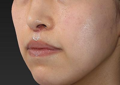 新宿ラクル美容外科クリニック 山本厚志 「人中短縮術(リップリフト)」 手術後1ヶ月目 12月18日