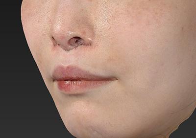新宿ラクル美容外科クリニック 山本厚志 「人中短縮術(リップリフト)」 手術直後 12月24日