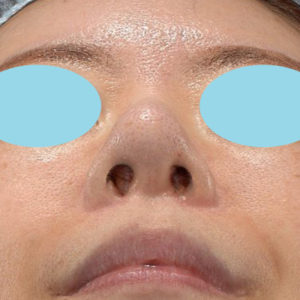 新宿ラクル美容外科クリニック 山本厚志 「オステオポア」「鼻尖縮小(close法)」 手術後2ヶ月目 1月9日