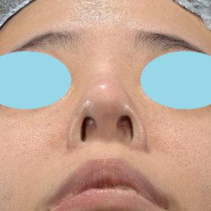 新宿ラクル美容外科クリニック 山本厚志 「オステオポア」「鼻尖縮小(close法)」 手術後3ヶ月目 2月19日