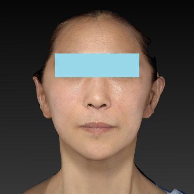 新宿ラクル美容外科クリニック 山本厚志 ナチュラルフェイスリフト 手術後1週間目 1月12日