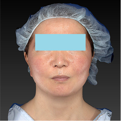 新宿ラクル美容外科クリニック 山本厚志 「ミントリフトⅡminiS flex(シークレットリフト)」 手術後12ヶ月目 7月29日