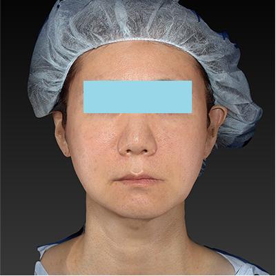新宿ラクル美容外科クリニック 山本厚志 「テスリフト ソフト(TESSLIFT SOFT)」 手術後2ヶ月目 1月17日