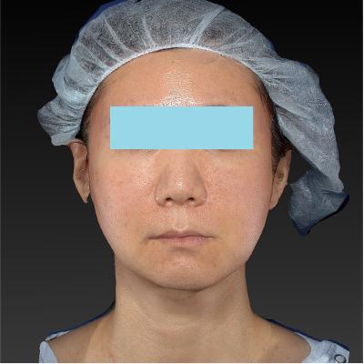 新宿ラクル美容外科クリニック 山本厚志 「テスリフト ソフト(TESSLIFT SOFT)」 手術後3ヶ月目 2月28日