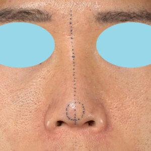 新宿ラクル美容外科クリニック 山本厚志 「オステオポア」「鼻尖縮小(close法)」 デザイン 1月18日