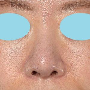 新宿ラクル美容外科クリニック 山本厚志 「オステオポア」「鼻尖縮小(close法)」 手術後3ヶ月目 2月15日