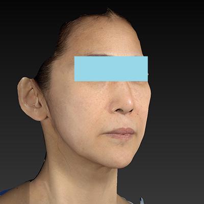 新宿ラクル美容外科クリニック 山本厚志 ナチュラルフェイスリフト 手術前 1月8日
