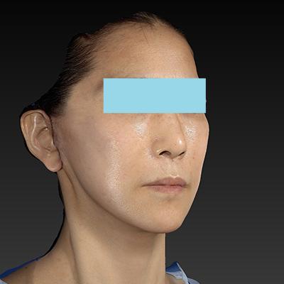 新宿ラクル美容外科クリニック 山本厚志 ナチュラルフェイスリフト 手術直後 1月8日