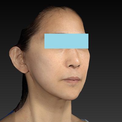 新宿ラクル美容外科クリニック 山本厚志 ナチュラルフェイスリフト 手術後1ヶ月目 2月8日