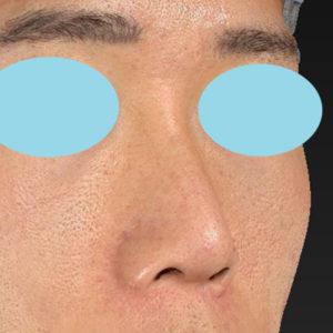 新宿ラクル美容外科クリニック 山本厚志 「オステオポア」「鼻尖縮小(close法)」 手術前 1月18日