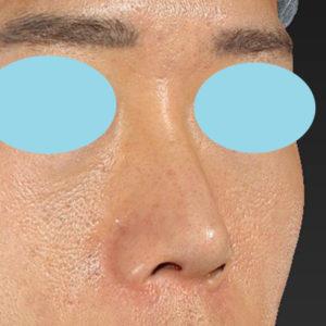新宿ラクル美容外科クリニック 山本厚志 「オステオポア」「鼻尖縮小(close法)」 手術直後 1月18日