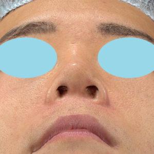 新宿ラクル美容外科クリニック 山本厚志 「オステオポア」「鼻尖縮小(close法)」 手術後1週間目 1月29日