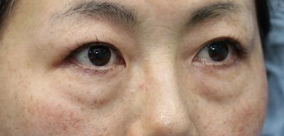 新宿ラクル美容外科クリニック 山本厚志 「切らない目の下のたるみ取り」「クレヴィエルプライム」手術前 1月14日