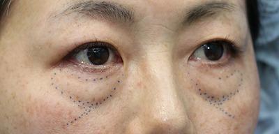 新宿ラクル美容外科クリニック 山本厚志 「切らない目の下のたるみ取り」「クレヴィエルプライム」 デザイン 1月14日