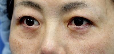 新宿ラクル美容外科クリニック 山本厚志 「切らない目の下のたるみ取り」「クレヴィエルプライム」 手術直後 1月14日