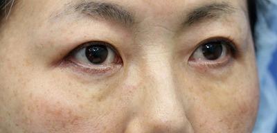 新宿ラクル美容外科クリニック 山本厚志 「切らない目の下のたるみ取り」「クレヴィエルプライム」 手術後1週間目 1月27日