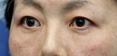 新宿ラクル美容外科クリニック 山本厚志 「切らない目の下のたるみ取り」「クレヴィエルプライム」 手術後1ヶ月目 3月10日
