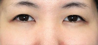 新宿ラクル美容外科クリニック 山本厚志 「埋没法二重術(エクセレントアイ)+目の上の脂肪取り(マイクロカット法)」 手術前 1月21日