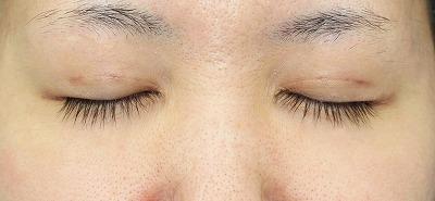 新宿ラクル美容外科クリニック 山本厚志 「埋没法二重術(エクセレントアイ)+目の上の脂肪取り(マイクロカット法)」 手術後1ヶ月目 2月18日