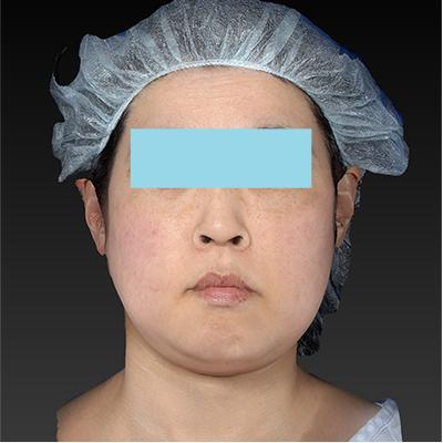 新宿ラクル美容外科クリニック 山本厚志 「テスリフト ソフト(TESSLIFT SOFT)」 手術前 2月20日