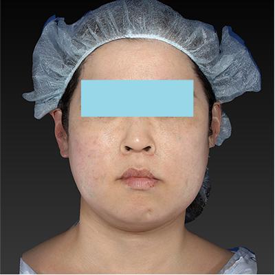 新宿ラクル美容外科クリニック 山本厚志 「テスリフト ソフト(TESSLIFT SOFT)」 手術直後 2月20日