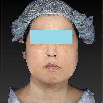 新宿ラクル美容外科クリニック 山本厚志 「テスリフト ソフト(TESSLIFT SOFT)」 手術後1週間目 2月20日