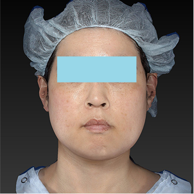 新宿ラクル美容外科クリニック 山本厚志 「テスリフト ソフト(TESSLIFT SOFT)」 手術後1ヶ月目 2月20日