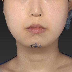 新宿ラクル美容外科クリニック 山本厚志 「アゴ プロテーゼ」 デザイン 2月7日