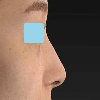 新宿ラクル美容外科クリニック 山本厚志 「Gメッシュ(G-Mesh)」「n-COG Y-ko(ワイコ)」 手術後3ヶ月目  2月11日