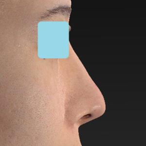 新宿ラクル美容外科クリニック 山本厚志 「オステオポア」「鼻尖縮小(close法)」 手術後2ヶ月目 2月19日
