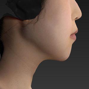 新宿ラクル美容外科クリニック 山本厚志 「アゴ プロテーゼ」 手術後1週間目 2月14日