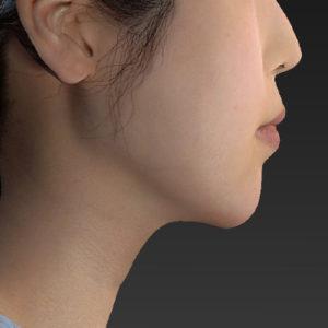 新宿ラクル美容外科クリニック 山本厚志 「アゴ プロテーゼ」 手術後1ヶ月目 3月7日