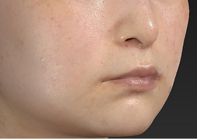 新宿ラクル美容外科クリニック 山本厚志 「人中短縮術(リップリフト)」 手術後3ヶ月目 4月4日