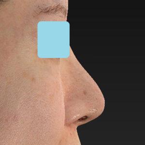 新宿ラクル美容外科クリニック 山本厚志 「オステオポア」「鼻尖縮小(close法)」 手術後6ヶ月目 5月8日
