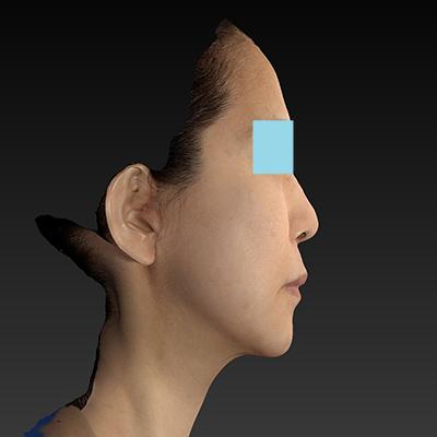 新宿ラクル美容外科クリニック 山本厚志 ナチュラルフェイスリフト 手術後2ヶ月目 3月10日