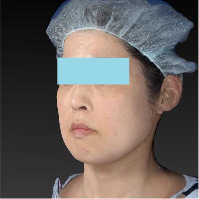 新宿ラクル美容外科クリニック 山本厚志 「テスリフト ソフト(TESSLIFT SOFT)」 手術後2ヶ月目 3月7日