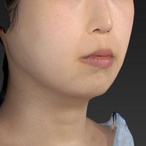 新宿ラクル美容外科クリニック 山本厚志 「アゴ プロテーゼ」 手術前 2月7日