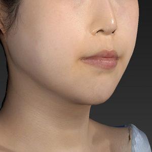 新宿ラクル美容外科クリニック 山本厚志 「アゴ プロテーゼ」 手術直後 2月7日