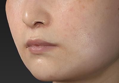 新宿ラクル美容外科クリニック 山本厚志 「人中短縮術(リップリフト)」 手術後2ヶ月目 2月28日