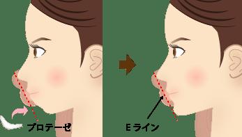 新宿ラクル美容外科クリニック 山本厚志 アゴ プロテーゼ