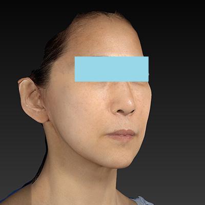 新宿ラクル美容外科クリニック 山本厚志 ナチュラルフェイスリフト 手術後3ヶ月目 4月10日