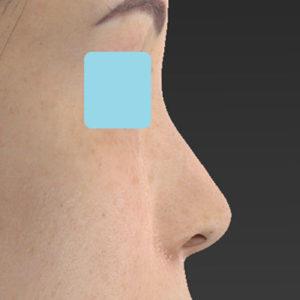 新宿ラクル美容外科クリニック 山本厚志 「小鼻縮小+α法」 手術後1ヶ月目 4月2日