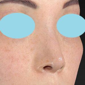 新宿ラクル美容外科クリニック 山本厚志 「小鼻縮小+α法」 手術前 3月3日