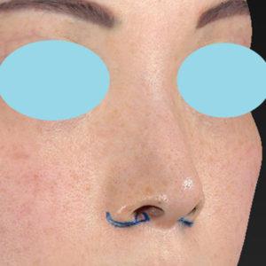 新宿ラクル美容外科クリニック 山本厚志 「小鼻縮小+α法」 デザイン 3月3日