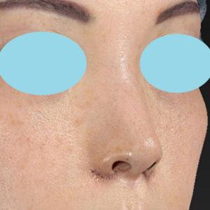 新宿ラクル美容外科クリニック 山本厚志 「小鼻縮小+α法」 手術直後 3月3日