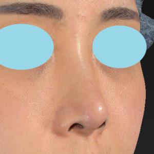 新宿ラクル美容外科クリニック 山本厚志 「オステオポア」「鼻尖縮小(close法)」 手術後2ヶ月目 4月26日
