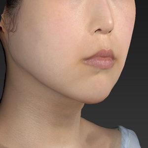新宿ラクル美容外科クリニック 山本厚志 「アゴ プロテーゼ」 手術後2ヶ月目 4月11日
