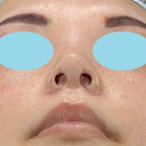 新宿ラクル美容外科クリニック 山本厚志 「小鼻縮小+α法」 手術後1週間目 3月3日