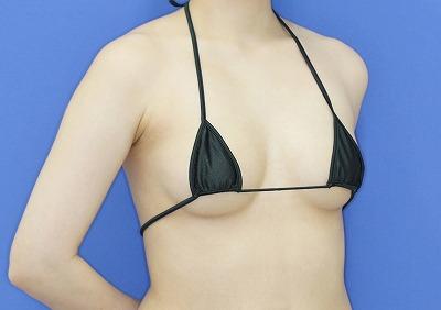 新宿ラクル美容外科クリニック 山本厚志 「ピュアグラフト脂肪注入豊胸」 手術前 3月21日